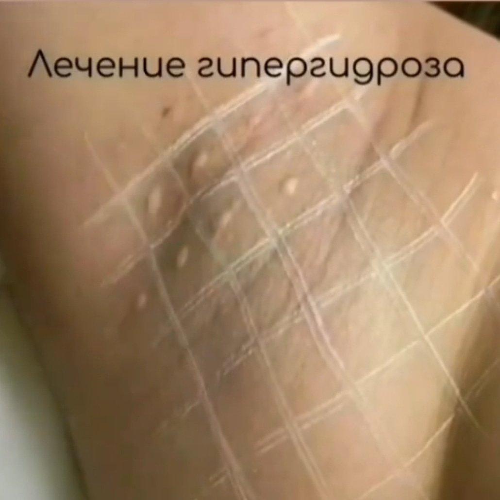 Як мати неперевершений вигляд навесні: поради лозівського масажиста-косметолога  Артема Ліпінського, фото-24