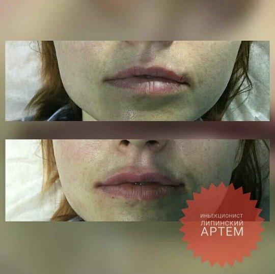 Як мати неперевершений вигляд навесні: поради лозівського масажиста-косметолога  Артема Ліпінського, фото-21