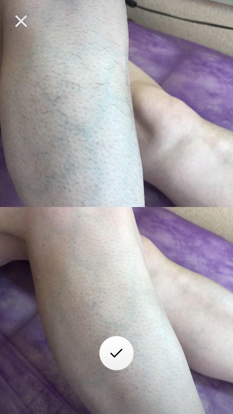 Як видалити небажане волосся та зробити шкіру максимально гладенькою: секрети засновниці студії «Кошка» Ірини Котової , фото-2