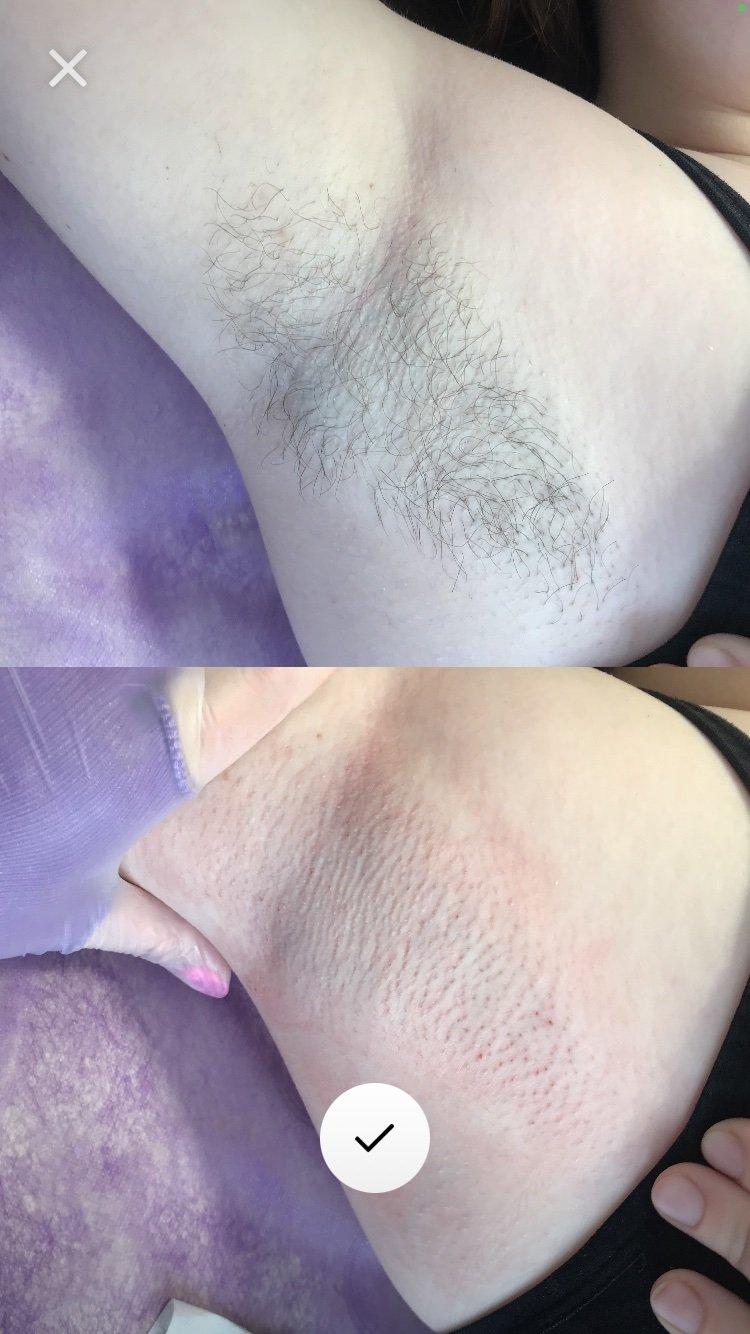 Як видалити небажане волосся та зробити шкіру максимально гладенькою: секрети засновниці студії «Кошка» Ірини Котової , фото-3